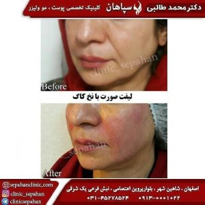 جوانسازی صورت با نخ