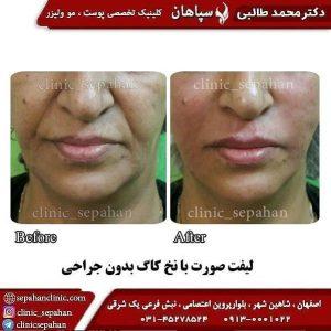 جوانسازی پوست با نخ