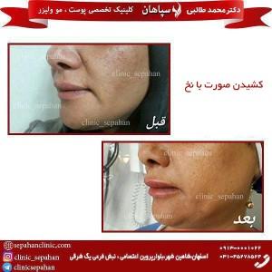 کشیدن صورت با نخ