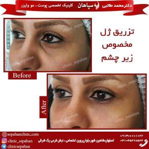 تزریق-ژل-مخصوص-زیر-چشم