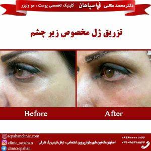 تزریق-ژل-مخصصوص-زیر-چشم