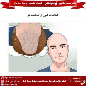 اقدامات قبل از کاشت مو