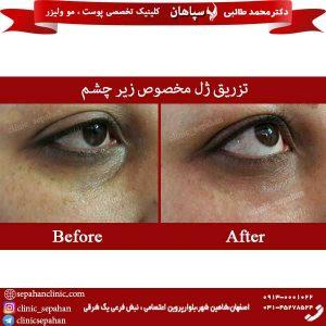 تزریق-ژل-مخصوص-زیر-چشم-1
