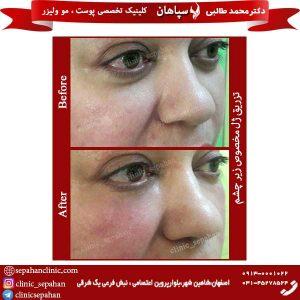 تزریق-ژل-مخصوص-زیر-چشم-2