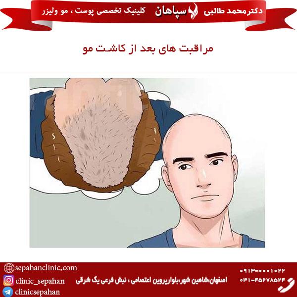 راقبت های بعد از کاشت مو
