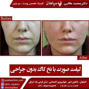 لیفت صورت با نخ کاگ بدون جراحی 2