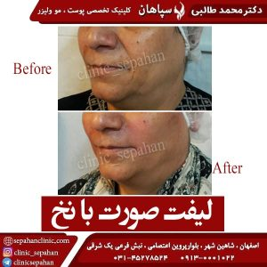 لیفت صورت با نخ اصفهان 3