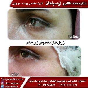 تزریق-فیلر-زیر-چشم-اصفهان