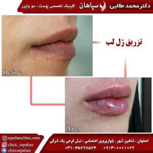 تزریق-ژل-لب-اصفهان-1