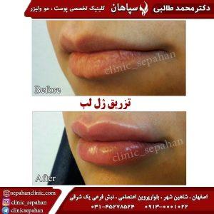 تزریق-ژل-لب-اصفهان-2