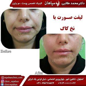 لیفت-با-نخ-کاگ-اصفهان-2