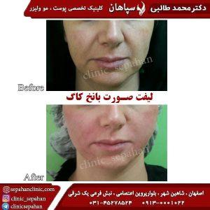 لیفت-با-نخ-کاگ-اصفهان-3