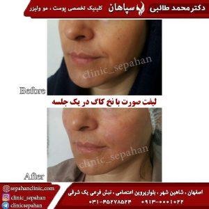 لیفت-با-نخ-کاگ-اصفهان-4