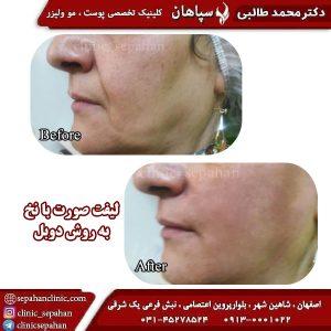 لیفت با نخ اصفهان 11