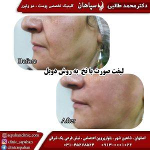 لیفت با نخ اصفهان 12