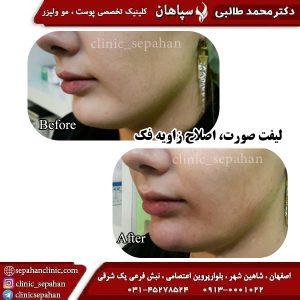 لیفت با نخ اصفهان 14