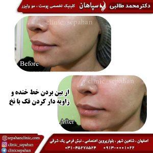 لیفت با نخ اصفهان 15