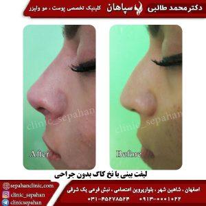 لیفت با نخ اصفهان 4