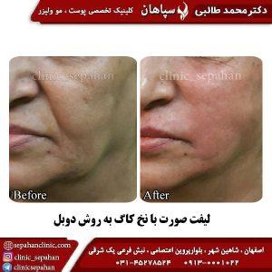 لیفت با نخ اصفهان 5