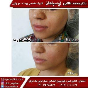 لیفت با نخ اصفهان 6