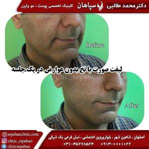 لیفت با نخ اصفهان 7