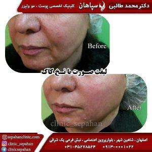 لیفت با نخ اصفهان 8