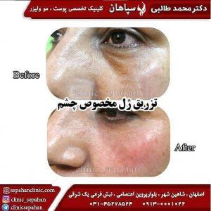 بهترین کلینیک زیبایی اصفهان