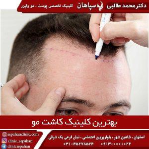 بهترین کلینیک کاشت مو اصفهان