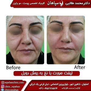 کلینیک زیبایی اصفهان