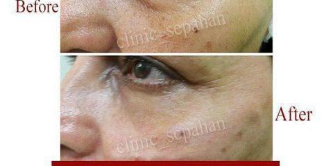 تزریق ژل در زیر چشم